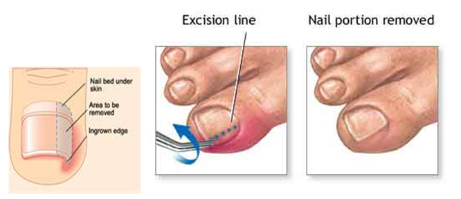 Ingrown-Toenails-Causes-Symptoms-and-Treatment